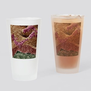Uterine cancer, SEM - Drinking Glass