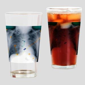 Heart surgery, X-ray - Drinking Glass