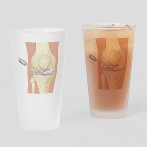 Torn cruciate ligament, artwork - Drinking Glass