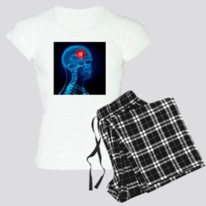 Brain cancer, artwork - Women's Light Pajamas
