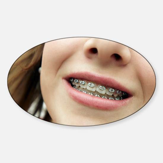 Dental braces - Sticker (Oval)
