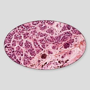 Skin mole, light micrograph - Sticker (Oval)