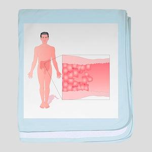 Crohn's disease, artwork - Baby Blanket