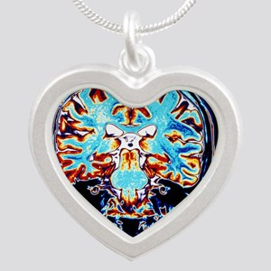 brain, coronal view - Silver Heart Necklace