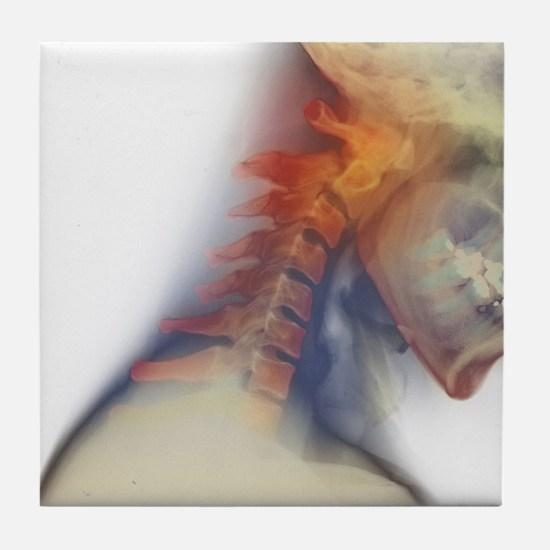 Broken neck - Tile Coaster