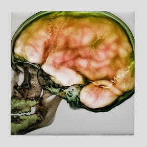 Child's skull - Tile Coaster