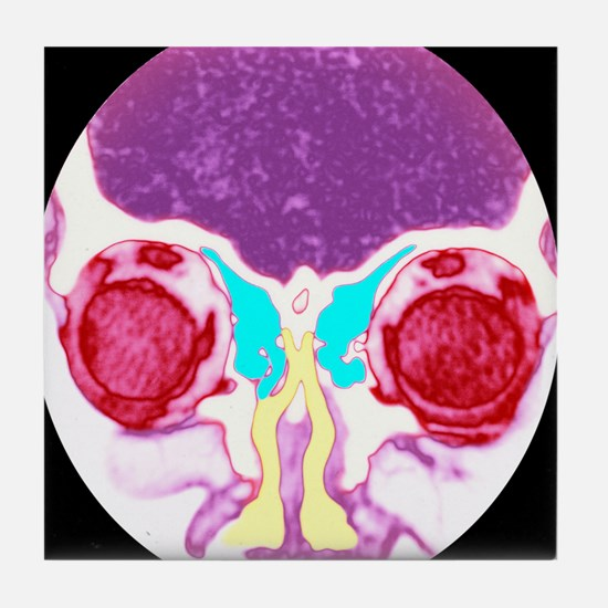 Nose and sinuses, CT scan - Tile Coaster