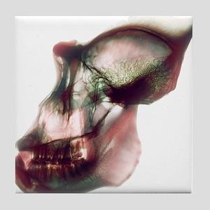 Gorilla skull, X-ray - Tile Coaster
