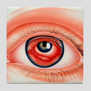 onjunctivitis - Tile Coaster