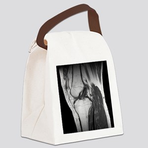 , CT scan - Canvas Lunch Bag