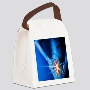 igh in pain - Canvas Lunch Bag