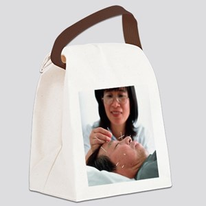 Acupuncture - Canvas Lunch Bag