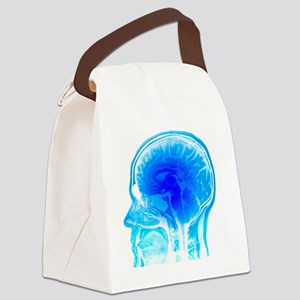 Brain anatomy, MRI scan - Canvas Lunch Bag