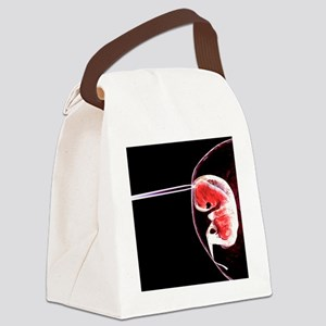 Embryo research - Canvas Lunch Bag