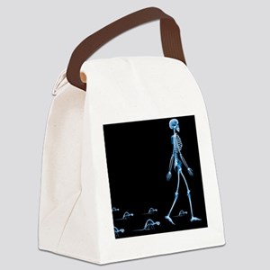 X-ray - Canvas Lunch Bag