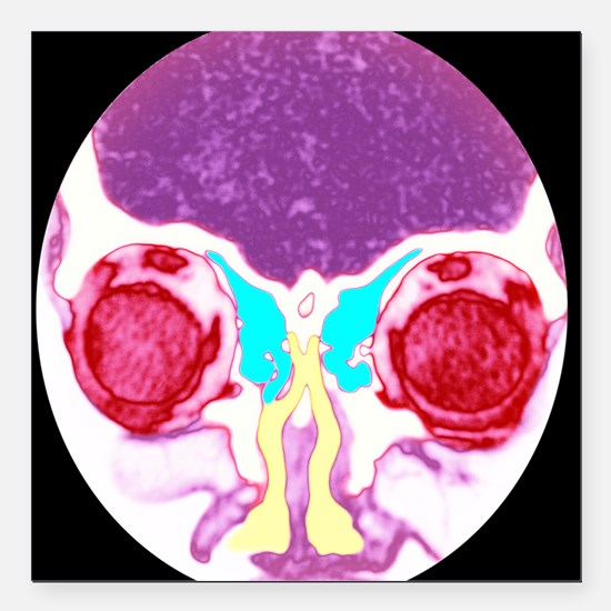 Nose and sinuses, CT scan - Square Car Magnet 3