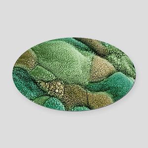Uterine cancer - Oval Car Magnet