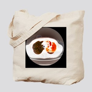 Lung abscess, CT scan - Tote Bag