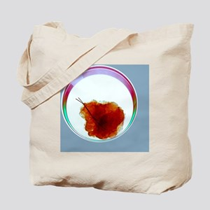 Breast cancer, X-ray - Tote Bag