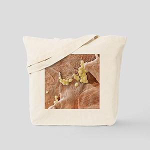 Yeast fungus skin infection, SEM - Tote Bag