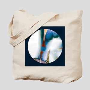 Corrected knee dislocation, X-ray - Tote Bag