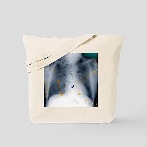 Heart surgery, X-ray - Tote Bag