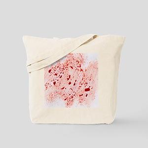 Blood - Tote Bag