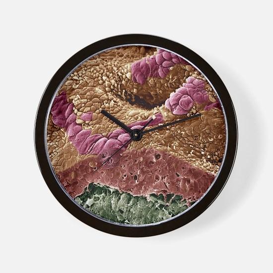 Uterine cancer, SEM - Wall Clock