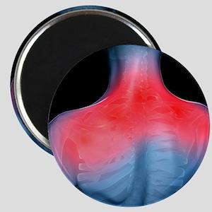 Shoulder pain, conceptual artwork - Magnet