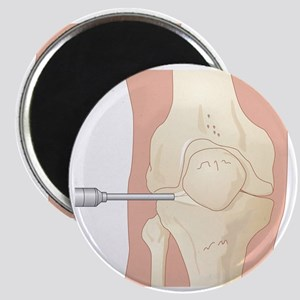 Knee arthroscopy, artwork - Magnet
