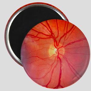 Normal retina of eye - Magnet