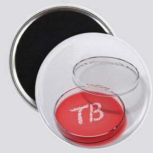 Tuberculosis bacteria in a petri dish - 2.25