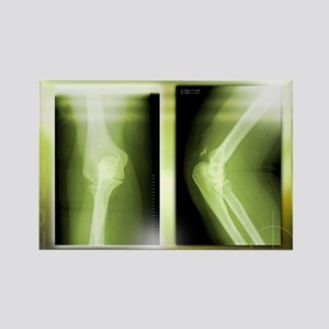 Fractured elbow, X-rays - Rectangle Magnet