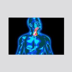 Throat pain - Rectangle Magnet (10 pk)