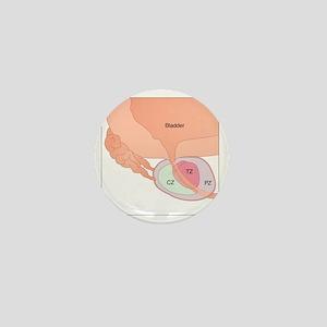 Prostate gland anatomy, artwork - Mini Button