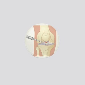 Torn cruciate ligament, artwork - Mini Button