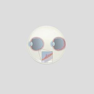 Detached retina, artwork - Mini Button (10 pk)