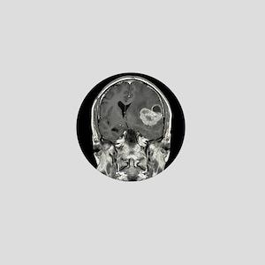 Brain cancer, MRI scan - Mini Button (10 pk)