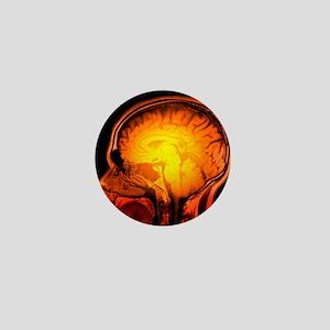 Brain anatomy, MRI scan - Mini Button (10 pk)