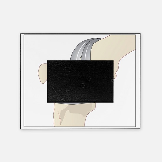 Knee replacement, artwork - Picture Frame