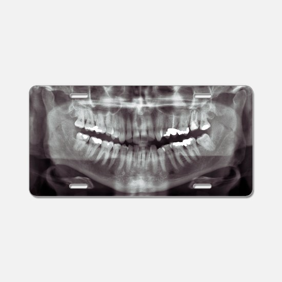 Panoramic dental X-ray - Aluminum License Plate