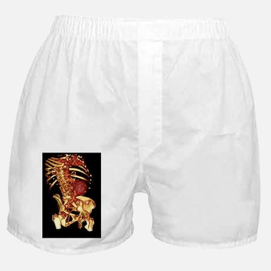 an - Boxer Shorts