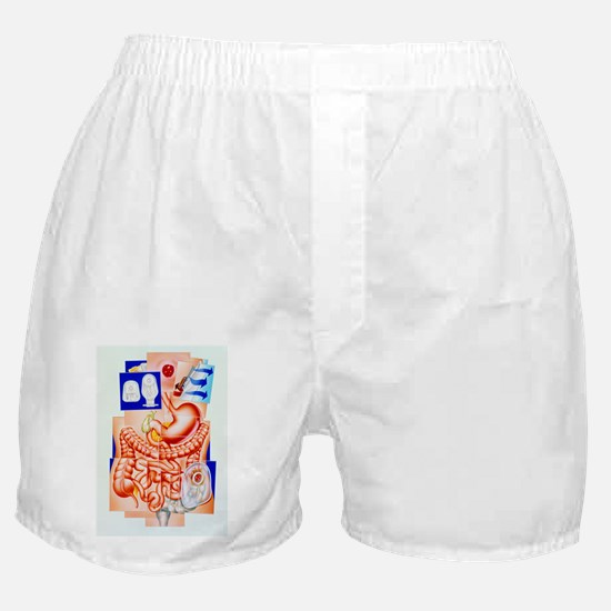 ostomy - Boxer Shorts