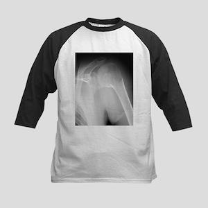 Broken shoulder, X-ray - Kids Baseball Jersey