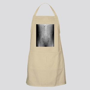 Swallowed toothbrush, X-ray - Apron