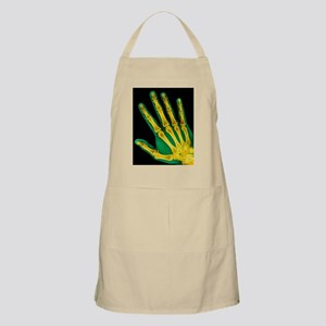 Healthy adult hand, X-ray - Apron