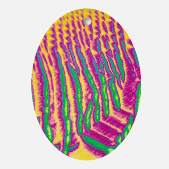 GABA crystals, light micrograph - Oval Ornament