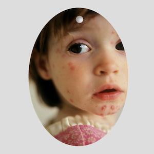 Chickenpox - Oval Ornament