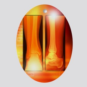 Healing ankle fracture, X-ray - Oval Ornament