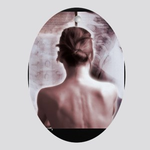 Woman with neck X-ray - Oval Ornament